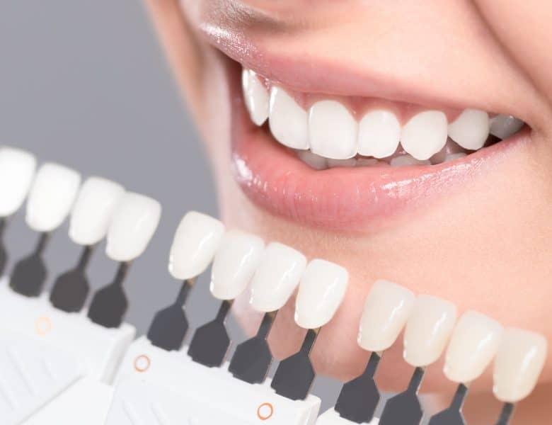 Dişlerin Sararmasının Nasıl Önüne Geçebiliriz?